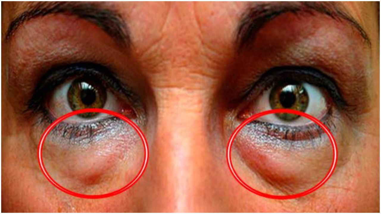 Learn The Best Natural Treatments To Remove Dark Circles And Bags