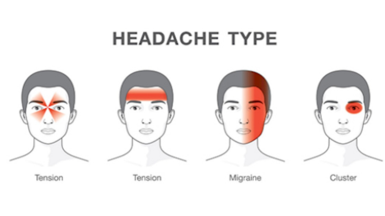 Is Your Headache a Sign of Something Serious photo